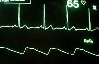 signal+noise 330749_3607_web.jpg